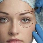 blefaroplastia-cirurgia-plastica-procedimentos-esteticos-giovana-romano-curitiba