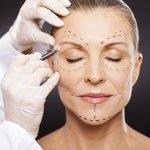 lifting-de-face-cirurgia-plastica-procedimentos-esteticos-giovana-romano-curitiba