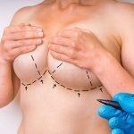 maxtopexia-cirurgia-plastica-procedimentos-esteticos-giovana-romano-curitiba