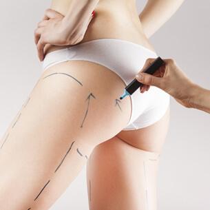 Coxoplastia plástica das pernas